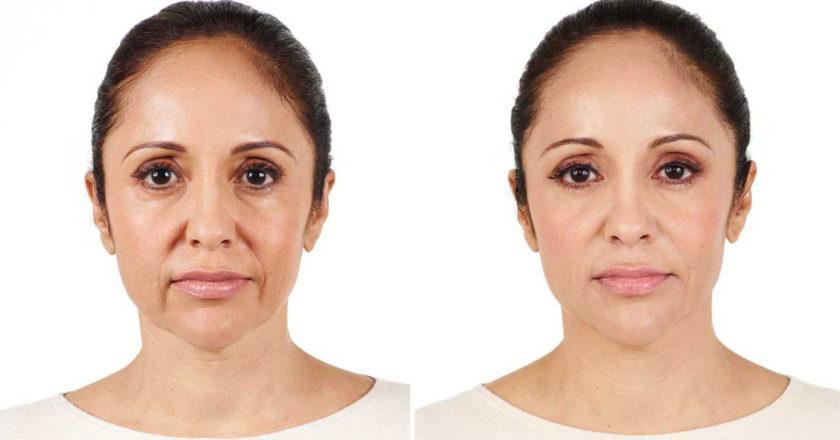 Radiesse, dermal fillers, natural collagen production, Radiesse fillers, Face Lift