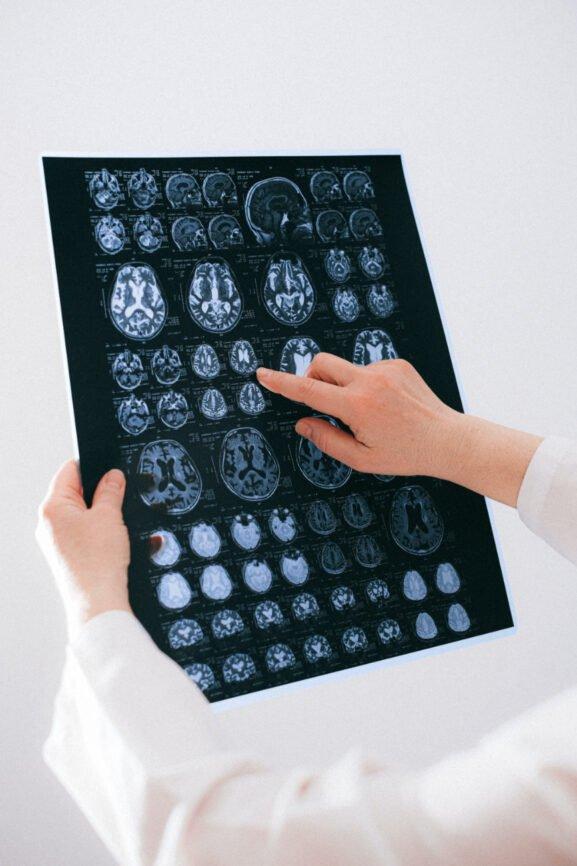 traumatic brain injury X-Rays displayed on screen