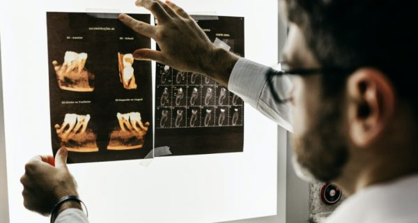 Dentist looking at X-rays