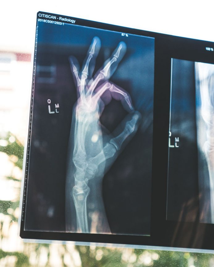 X-Ray of hand making the OK sign