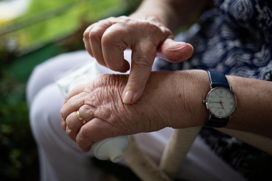 Swollen Elderly Hands